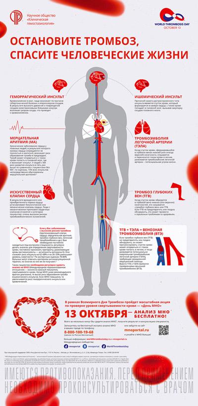 Как остановить себе сердце в домашних условиях - Mdoy129.ru