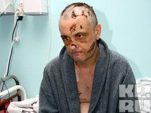 Бизнесмен Сергей Тимин чудом выжил после 126 ударов топором.