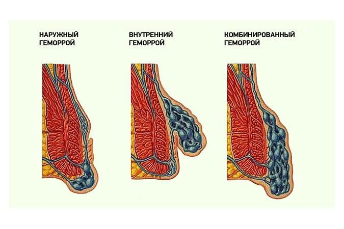 Молочница фото симптомы и лечение у взрослых