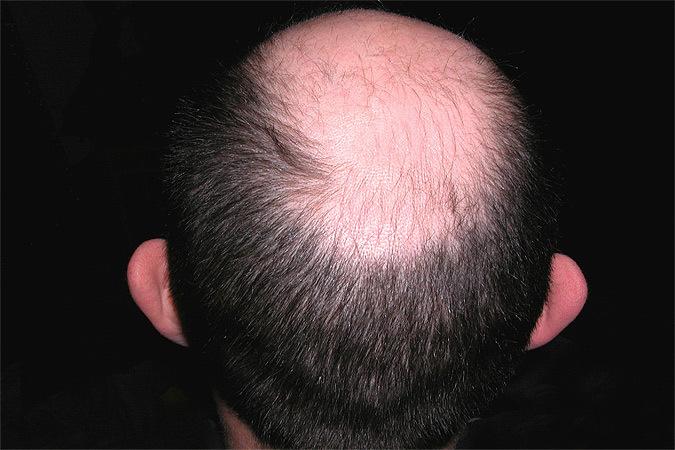 Как отрастить волосы быстро после короткой стрижки