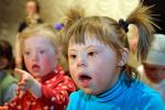 Швеция безрезультатно борется с синдромом Дауна