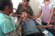 Китаец, разбиравший дом, пробил металлическим стержнем голову, но выжил