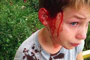 Военный пенсионер игрушечным пистолетом пробил голову школьнику