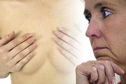 Удалить грудь, чтобы не заболеть раком: спасение или безумие