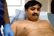 Мужчине, потерявшему пенис в аварии, вживили полнофункционирующий био-протез длиной 20 см