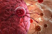 Почему в России умирают от тех видов рака, которые в Израиле лечат в поликлиниках (часть 1)