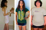 Умиравшая от анорексии девушка за год поправилась с 25 до 100 кило. И снова села на диету