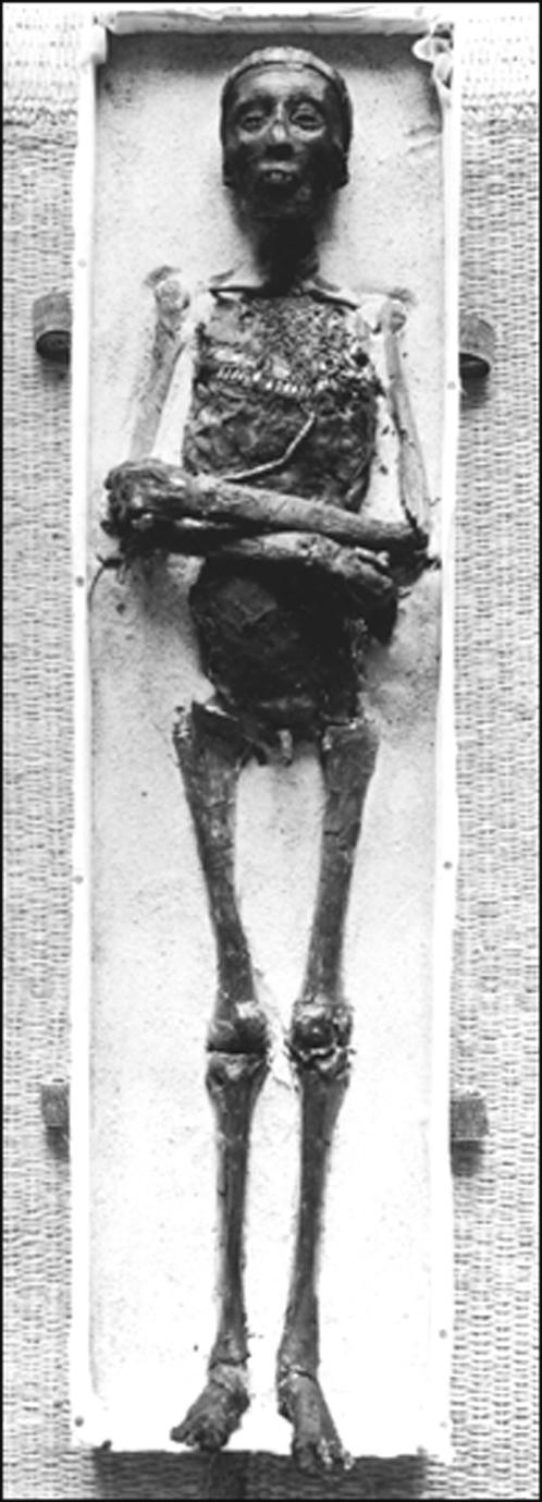 Таким предстал Тутанхамон, лишенный покровов