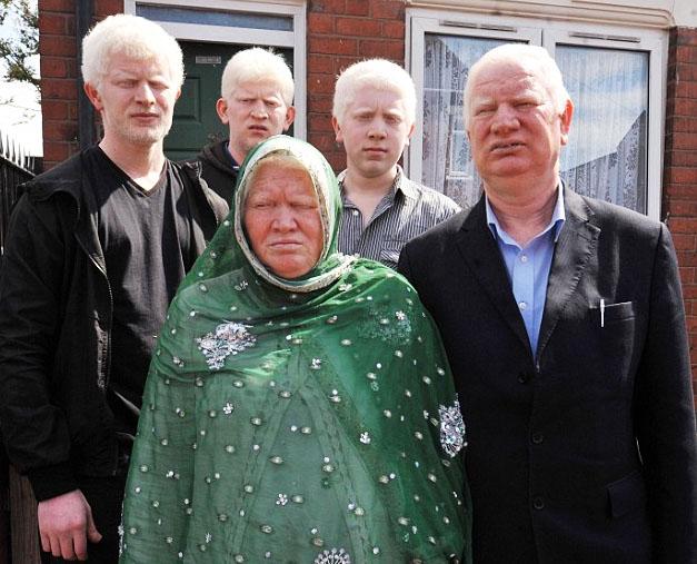 Белокурая семья выходца из Пакистана всю жизнь подвергалась насмешкам со стороны окружающих.