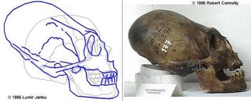 Череп конусом, слева - сравнение с обычным человеческим черепом