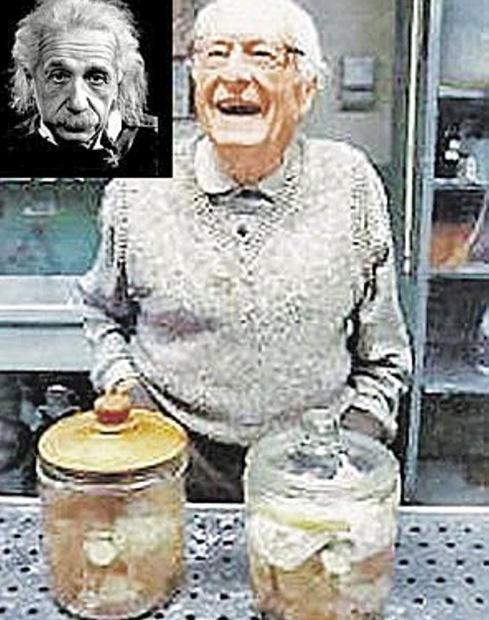 Доктор Харвей с колбами, где хранил мозг физика.