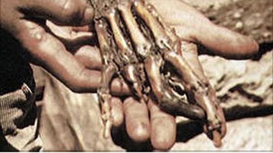 """Рука йети"", от которой был отрезан палец"