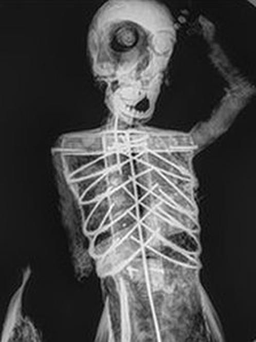 Рентген русалки показал, что внутри у нее проволока