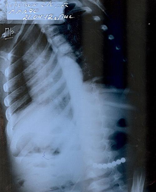 Рентген Гавриила. На снимке внизу справа видна незамкнутая цепь из 7 шаров