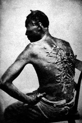 Чернокожий раб после наказания ударами плети. Луизиана, 1863
