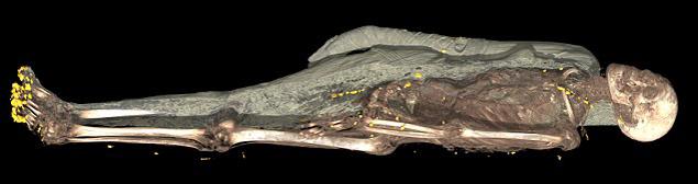 Сканер буквально снимает с мумий покровы.
