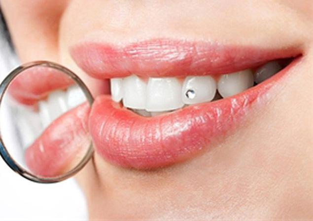 отбеливание зубов дома купить